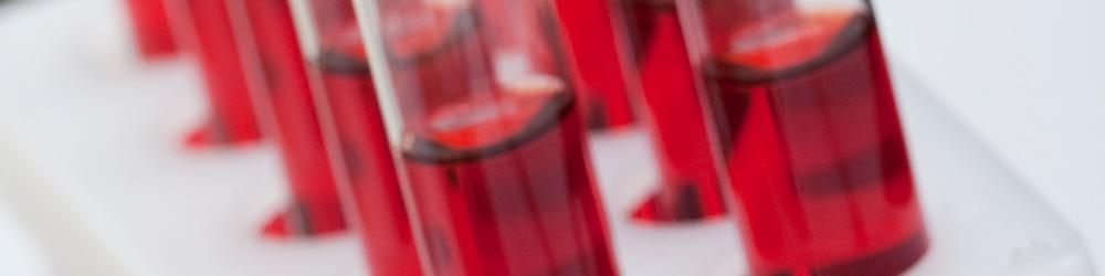 Blood Metal Analysis - Whole Blood / Serum / Plasma
